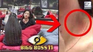 Bandgi Kalra Gets A Love Bite From Puneesh Sharma? | Bigg Boss 11