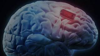 The new normal - Microchips in your hand and in your brain just got one HUGE push FORWARD!