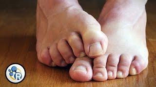 Why Do Feet Smell?