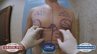 Hi-Def Physique VaserLipo Gynecomastia Surgery Huntington Long Island NY by Dr Lebowitz