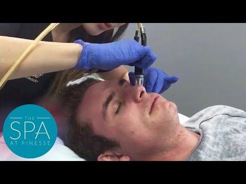 Xxx Mp4 Silk Peel Diamond Facial Compilation SPA At Finesse In Orange County 3gp Sex