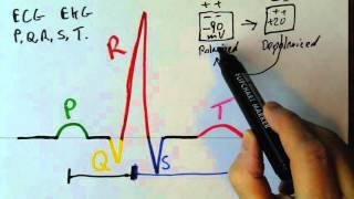 P,Q,R,S,T waves in the EKG