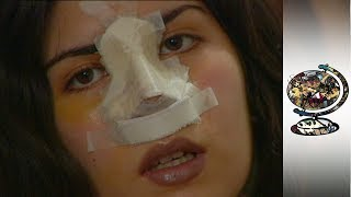 Cosmetic Surgery Takes Off In Iran (2001)
