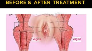 Tight Vagina naturally with 100% herbs , Vagina tightening Ayurvedic kit योनि संकुचित के कुदरती उपाय