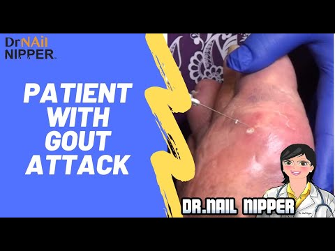 Xxx Mp4 Patient With Gout Attack 3gp Sex