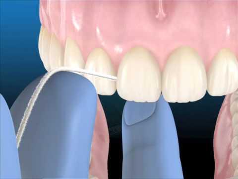 Uso correcto de la seda dental