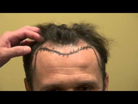 Man Hairline Lowering Frontal Hair Loss Transplant Surgery Dr. Diep www.mhtaclinic.com Bay Area CA