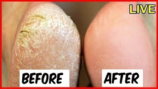 Natural Way to Remove Cracked Heels Overnight - 100% Works