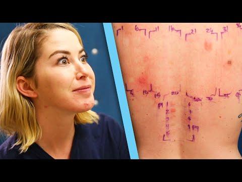 Xxx Mp4 Women Get Makeup Allergy Tests 3gp Sex
