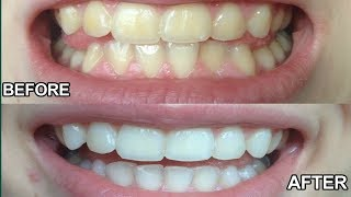 Solution For Yellow Teeth | Homemade Health Videos | Gold Star Health