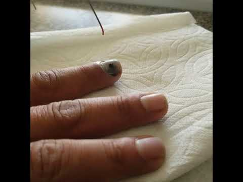 Xxx Mp4 Relieving Pressure Off A Smashed Finger Using A Paperclip 3gp Sex
