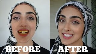 How To WHITEN Yellow Teeth NATURALLY & INSTANTLY AT HOME in 2 MINS | OIL PULLING ~ Immy