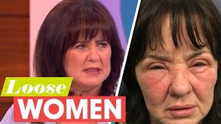Coleen Reveals Her Shocking Stress Related Allergy | Loose Women