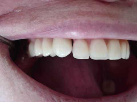 Reabilitação oral prótese fixa e móvel com attachment 1