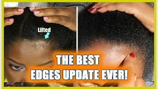 THE BEST TRACTION ALOPECIA RESULTS EVER NeziNapps