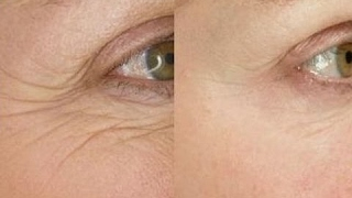 Smooth Eye Wrinkles With This Easy 5 Minute Face Massage