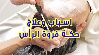 اسباب وعلاج حكة فروة الرأس