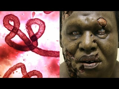 watch 10 Diseases That Could Wipe Out Humanity