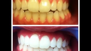 Teeth Whitening - How to Get White Teeth Fast at Home in Hindi- Natural Treatments for Cure Teeth