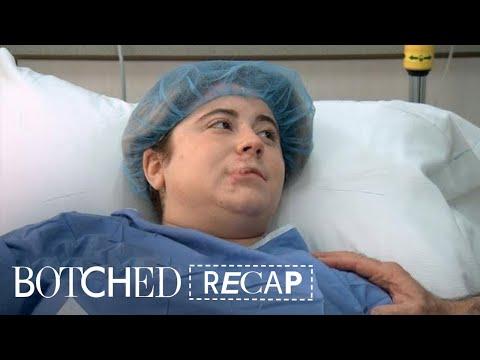 Xxx Mp4 Botched Recap Season 4 Episode 18 E 3gp Sex