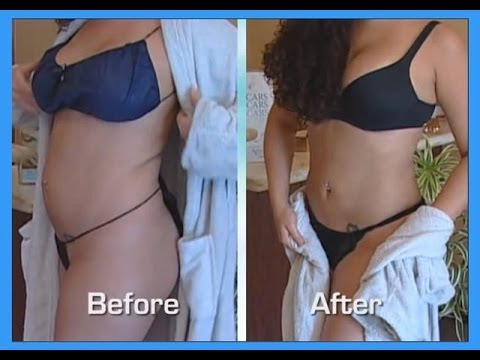Abdomen and Waist Smartlipo Tumescent Liposuction