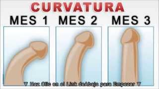 como curar la curvatura del pene