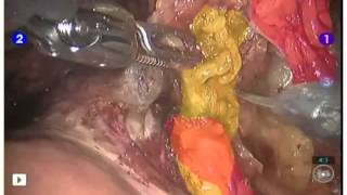 Female organ-sparing robotic cystectomy: A step-by-step anatomic approach