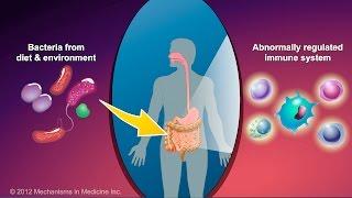 What is Crohn