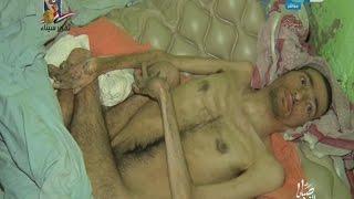 صبايا الخير |  جن يحول شاب وأخوه إلى شكل مخيف بعد أن كانوا في قمة صحتهم والسبب غريب جداً..!