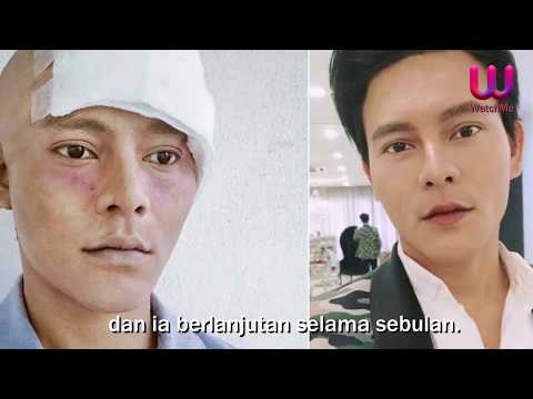 Xxx Mp4 Lima Artis Malaysia Yang Menghidapi Kanser Dan Penyakit Kronik 3gp Sex