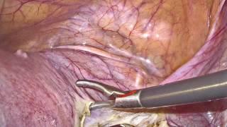 Bloodless Laparoscopic Hysterectomy