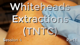 Whiteheads Extraction (TNTC) - Session 4 - Part I