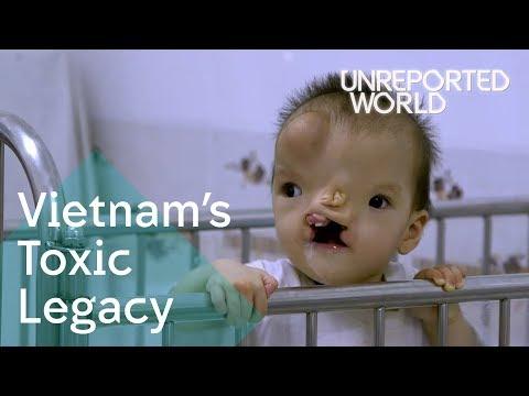 Xxx Mp4 The Vietnam War S Agent Orange Legacy Unreported World 3gp Sex