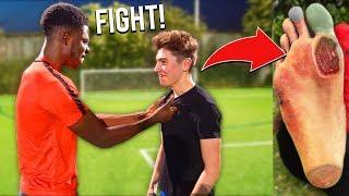 I Got REVENGE On Football Team That BROKE MY FOOT In a Soccer Match (INJURY)