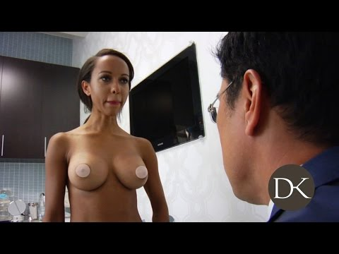 Breast Augmentation Trans umbilical Approach