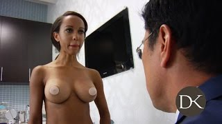 Breast Augmentation: Trans-umbilical Approach
