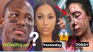 LeSean McCoy Denies Beating Up Girlfriend after Pictures & Story Leak 😱