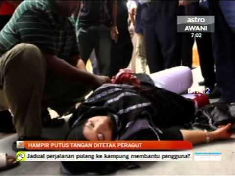 Hampir putus Tangan ditetak Peragut di Kota Bharu