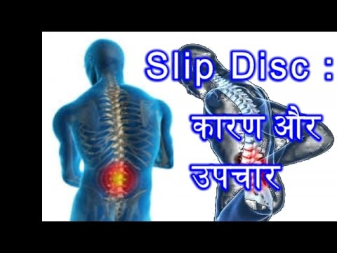 slipped disc | Causes And Treatment Of Waist Pain slipped disc | कारण और कमर दर्द उपचार स्लिप डिस्क