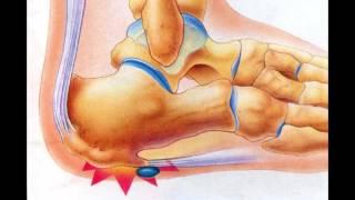 Почему болят пятки ног? Рассморим 7 основных причин.
