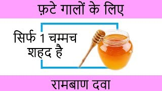 Chapped Cheeks Home Remedies - फटे गालों के घरेलू उपाय - Beauty Tips in Hindi by Sonia Goyal #22