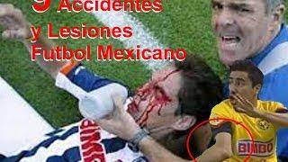 9 Lesiones y Accidentes en el Futbol Mexicano