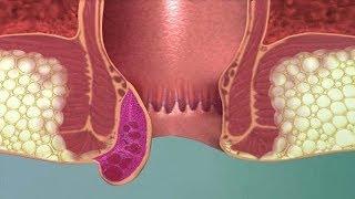 أفضل  العلاجات المنزلية للبواسير ✅