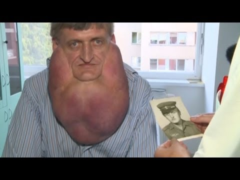 Massive Tumor Removed from Man s Face