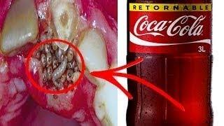 هل تعلم ماذا يفعل كوب واحد من الكوكاكولا في جسمك !!
