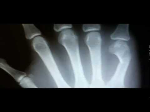Metacarpal Fracture Symptoms X Ray Findings Treatment