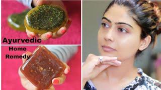 HOMEMADE INSTANT SKIN BRIGHTING SOAPS (100% Work) | Rinkal Soni