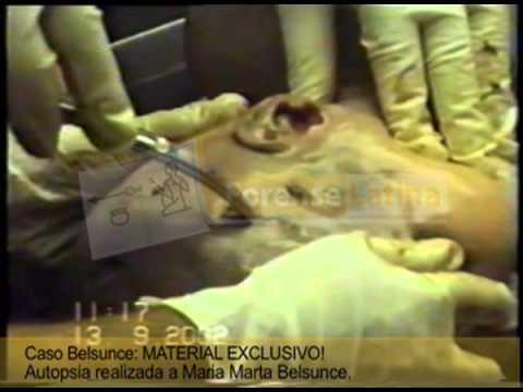 Autopsia García Belsunce.mov