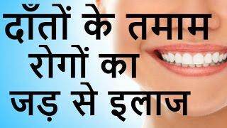 दाँतों व मसूड़ो में खून, पस व दर्द की तमाम बीमारियों का इलाज| Daato Ki Bimario ka Gharelu Upchar