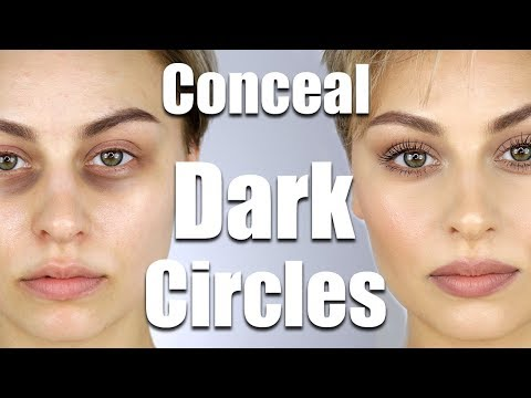 Xxx Mp4 How To Conceal Dark Circles Under Eyes Alexandra Anele 3gp Sex